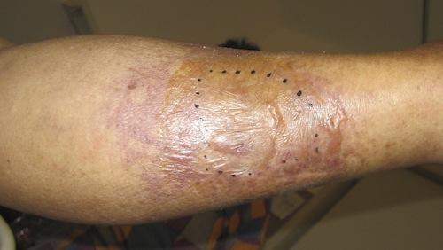 人食いバクテリアに感染した足