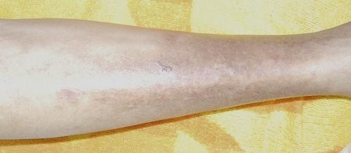 人食いバクテリアに感染した足6(治療後)