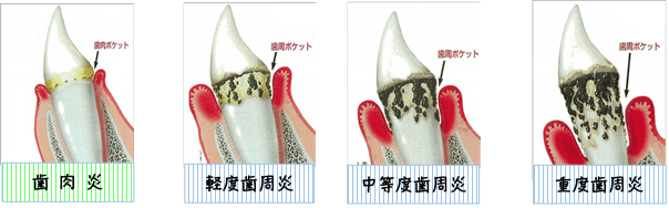 歯肉炎歯周炎